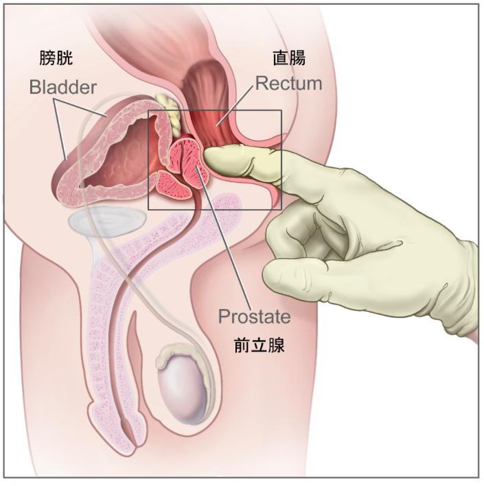前立腺の位置が分かるイラスト
