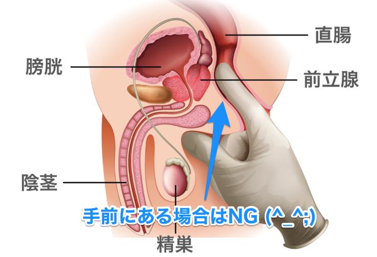 前立腺と直腸の位置が良く分かるイラスト